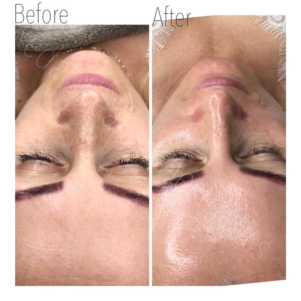 Dermaplaning Teddington Beauty Salon 1