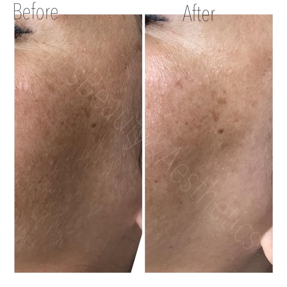 Dermaplaning Teddington Beauty Salon 2