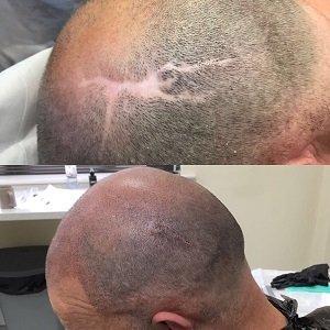 Micropigmentation to cover scarring at Shape Hair Design Teddington