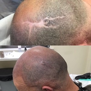 Micropigmentation to cover scarring at Shape Hair Design Teddington