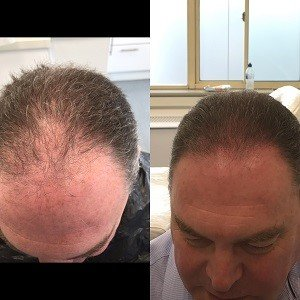 Micropigmentation to cover hair loss