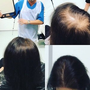 Micropigmentation to cover hair loss in women
