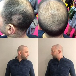 Cover thinning hair with micropigmentation