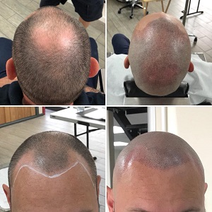 Disguise hair loss with scalp micropigmentation